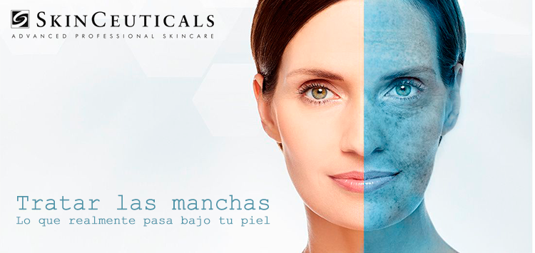 Tratar manchas | Blog Nieves Murillo Farmacia Boulevard