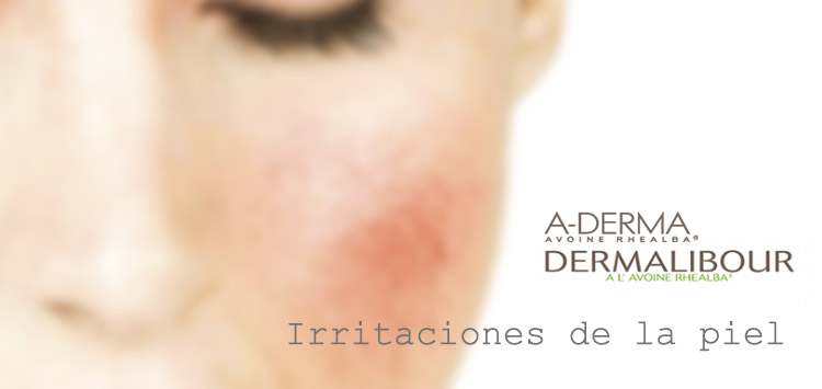 Irritaciones de la piel